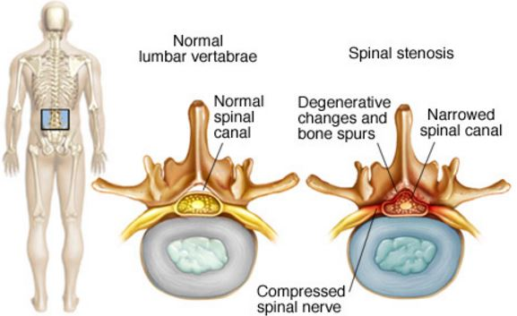 cervical-spinal-stenosis