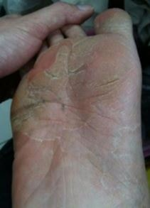 foot-fungus-picture