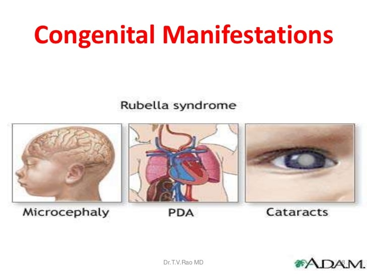 rubella-during-pregnancy-congential-malformations