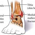 Medial Malleolus Fracture