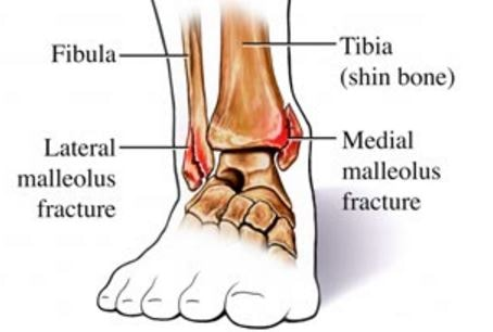 ankle-joint-medial Malleolus fracture