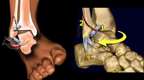Avulsion Fracture at ankle