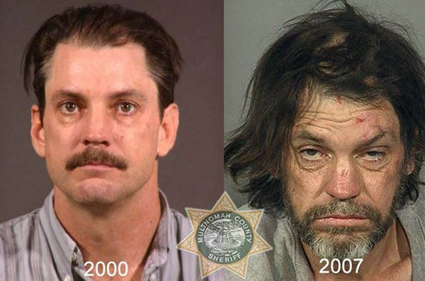 Ecstasy Before n after