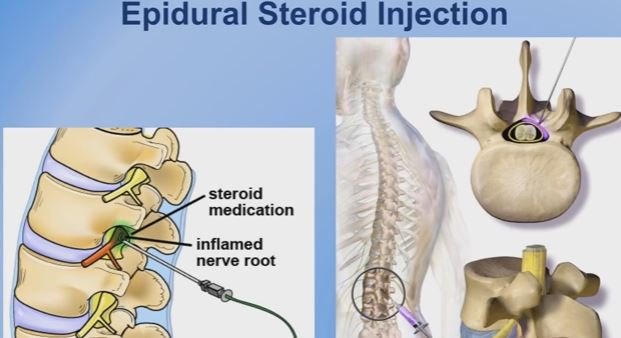 epidural-steroid-injection for stenosis