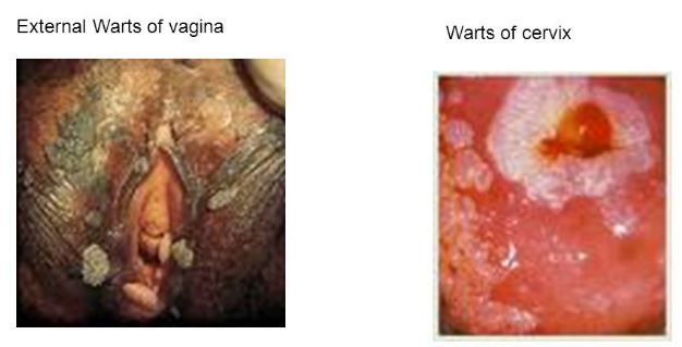 Genital Warts: Symptoms, Causes, Diagnosis and More