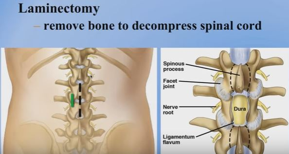 laminectomy-for-lumbar-spinal-stenosis
