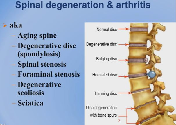 Lumbar Spinal Stenosis - Symptoms, ICD 9, Surgery ...