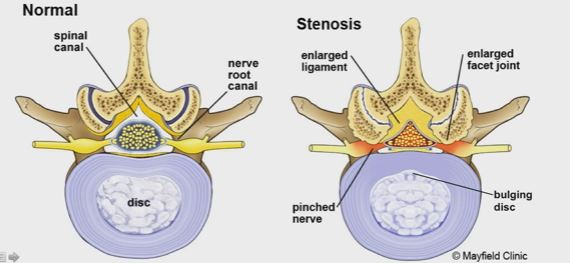 Lumbar Spinal Stenosis-vs-normal-vertebrae