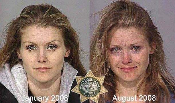 Methamphetamine before and after