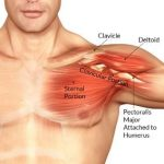 Torn Pectoral Muscle