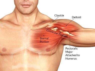 Pectoralis Muscle Torn 3