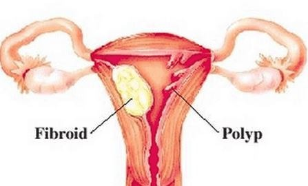 Polyps n fibroids in uterus