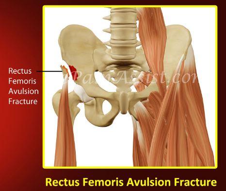 Rectus Femoris Avulsion Fracture Femur