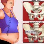Symphysis Pubis Dysfunction