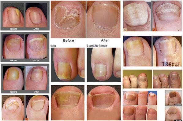 Toenail Fungus laser treatment