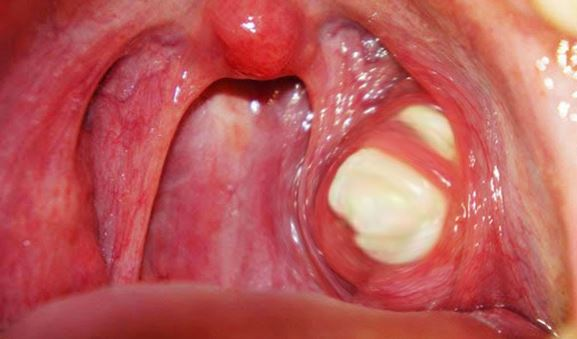 Tonsil Stones - How to Get Rid, Removal, Causes, Prevent