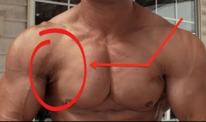 Torn Pectoral Muscle 1