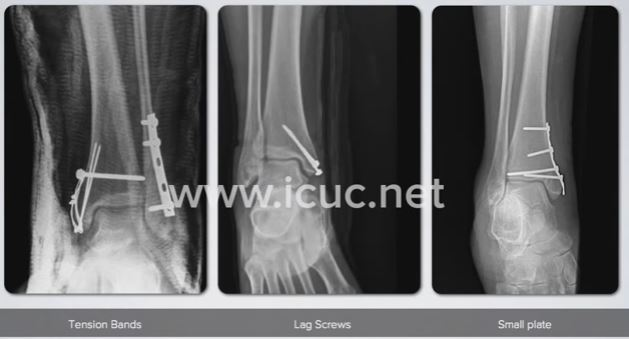 treatment-surgery-screws-plate-tension-bands