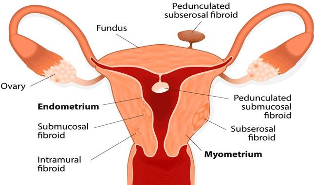 Polyps in Uterus - Causes, Treatment, Removal, Symptoms, Diagnosis