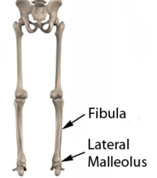 Lateral Malleolus image