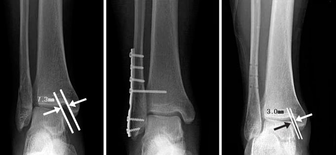 Lateral Malleolus Fracture surgery internal fixation
