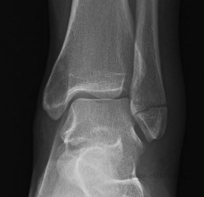 Lateral Malleolus Fracture photo