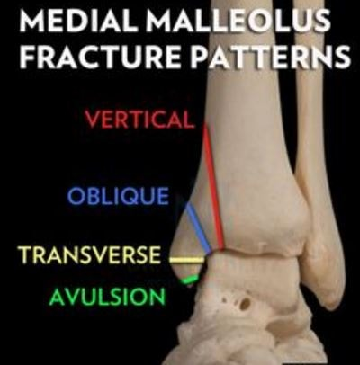 Medial Malleolus Fracture patterns