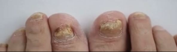 how to soften thick toenails for cutting