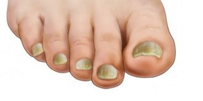 what causes thick toenails